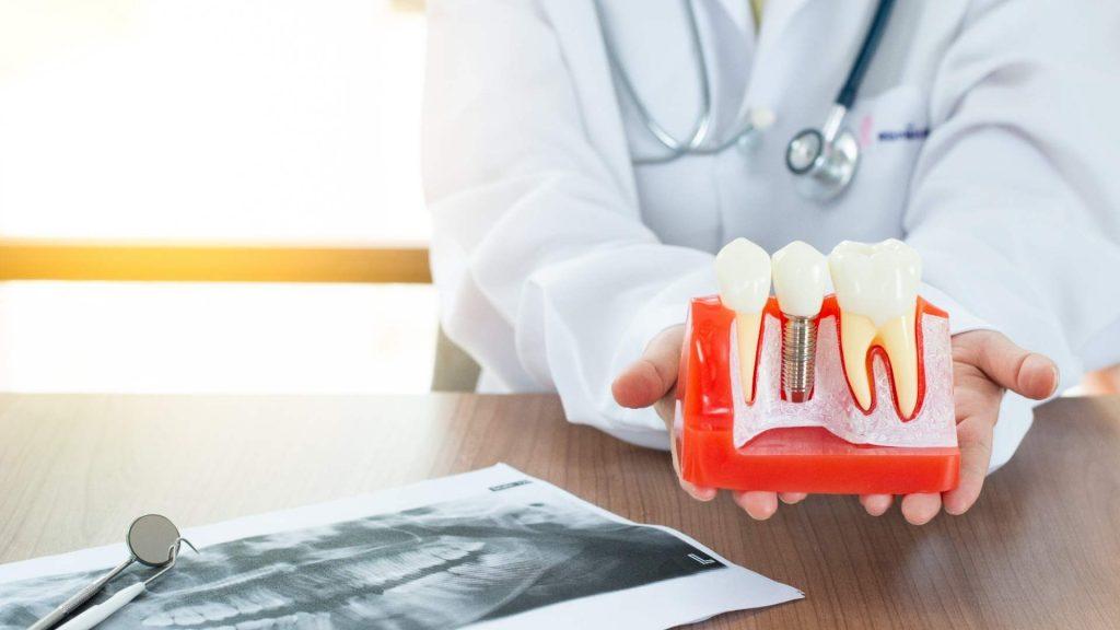 consejos dentistas Mallorca implantes